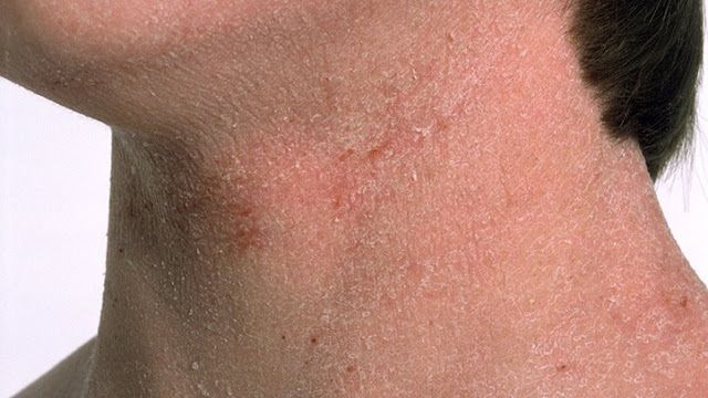 Rash in facial hair