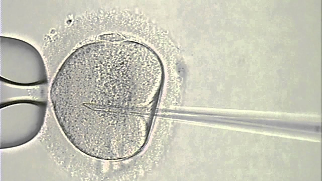 sperm Icsi injection intracytoplasmic