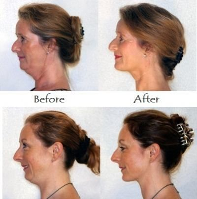 the tightening Facial for neck exercises