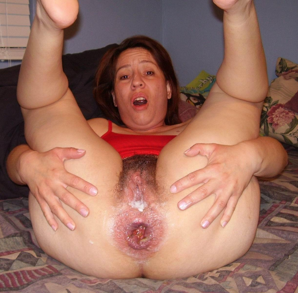 hole insertions Xhamster extreme ass