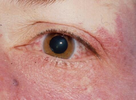 nevus Sturge facial syndrome weber without