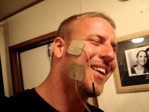 electrical stimulation Facial muscle