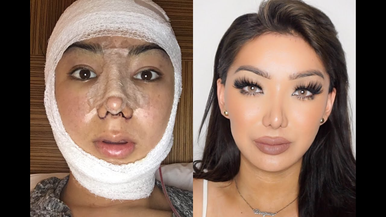 facial surgery Chattanooga plastic