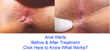 treatment anal warts Homiopathic