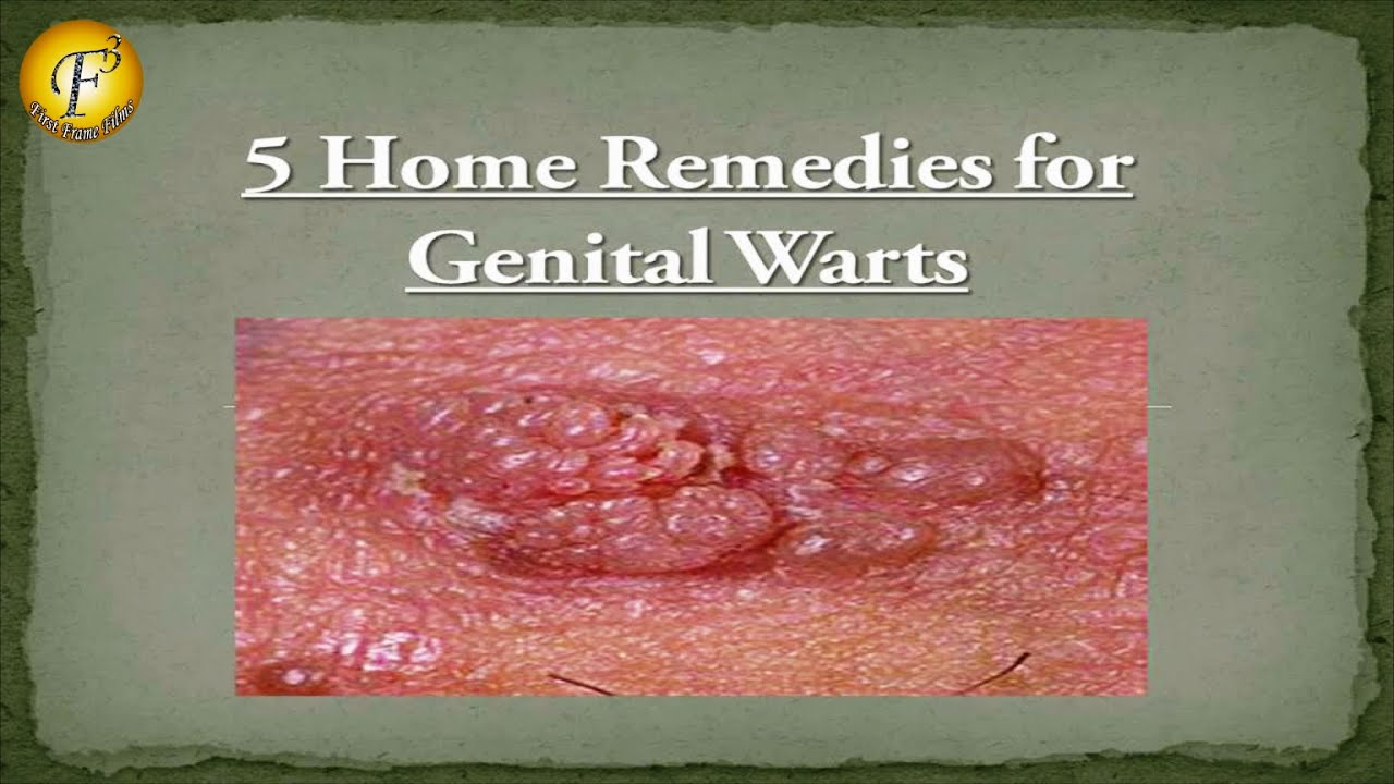 Homiopathic treatment anal warts