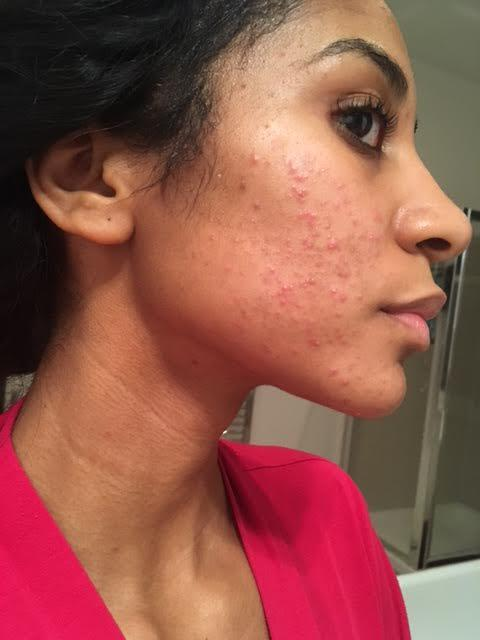 facial Rash hair in