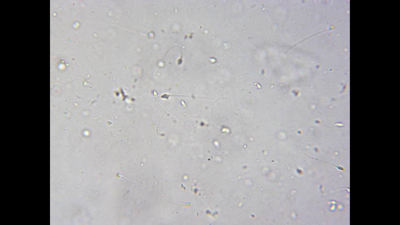 microscope analysis Sperm